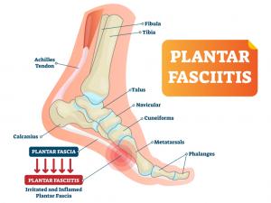 Plantar Fasciitis Description